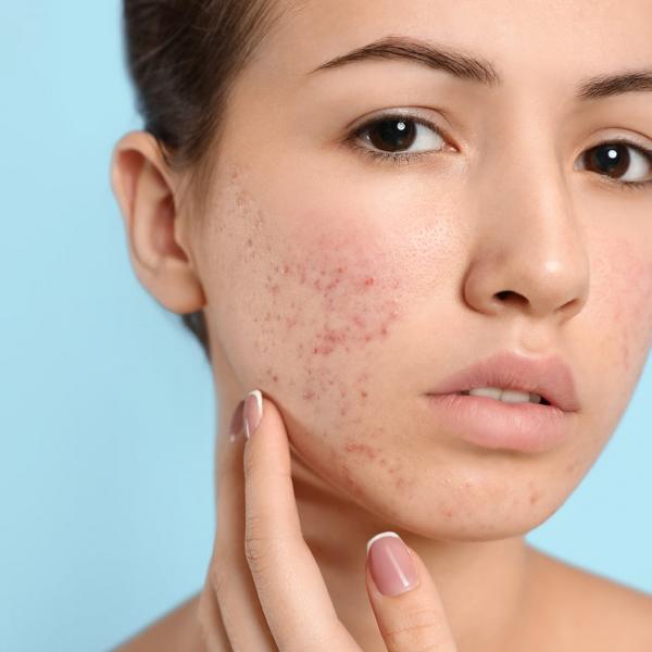 Sérum Corrector Oily Skin